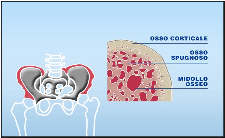 Quali tessuti possono essere trapiantati: il midollo osseo